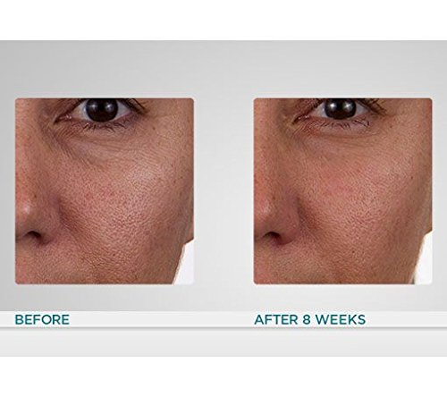 Conture Anti-Aging Skin Toning System for Face & Neck If Sold Separately: $371.00 by Conture (Image #4)