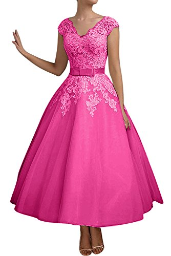 Topkleider para trapecio mujer 60 Vestido rosa qrEYrv