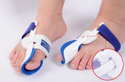 Beetle-crusher Bone Ectropion Toes Outer Appliance Professional Technology Health Care Products by Brand new