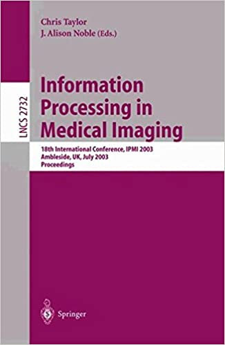 Information Processing in Medical Imaging: 18th