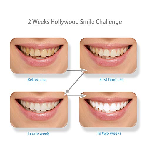 Buy which are the best whitening strips