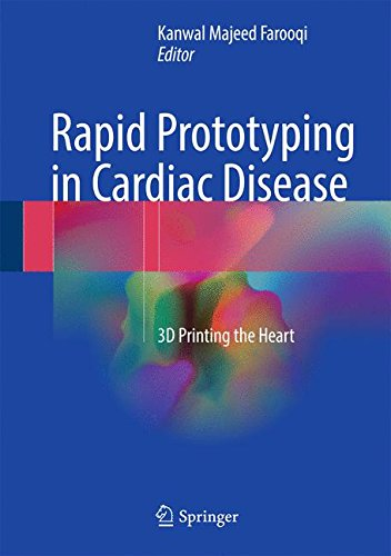 Rapid Prototyping In Cardiac Disease  3D Printing The Heart