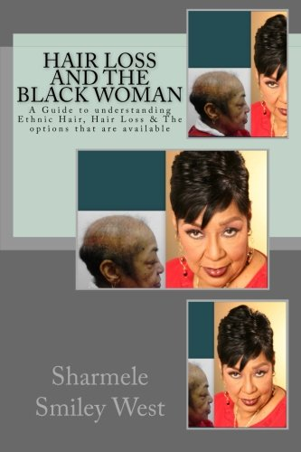 Hair Loss and the Black Woman: A Guide to understanding Ethnic Hair, Hair Loss & The options that are available