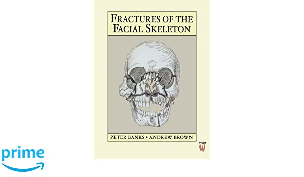 Assured, The facial skeleton will your