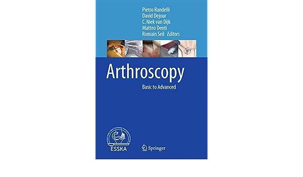 Arthroscopy: Basic to Advanced: 9783662493748: Medicine & Health