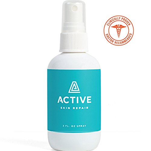 Active Skin Repair Spray - The Natural & Non-Toxic Healing Ointment & Antiseptic Spray for Minor cuts, scrapes, rashes, sunburns and Other Skin irritations (3oz) (Healing Ointment Relief Skin)