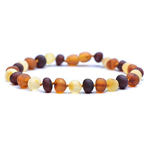 Raw Baltic Amber Bracelet for Adult with A Plastic Screw - Choose Your Color and Choose Your Size! - 3 Sizes and 10 Genuine Baltic Amber (8.6inches, - Bracelet Balance Pain $10