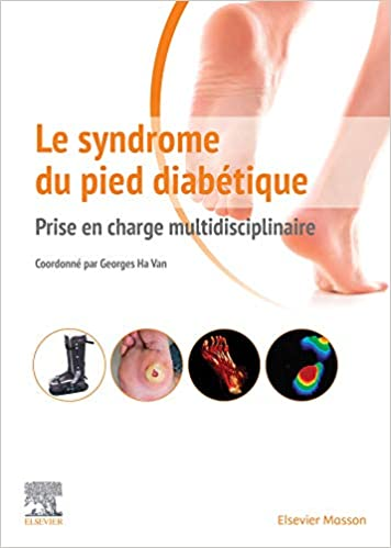 Le syndrome du pied diabétique: Prise en charge multidisciplinaire (Hors collection) (French Edition) - Original PDF