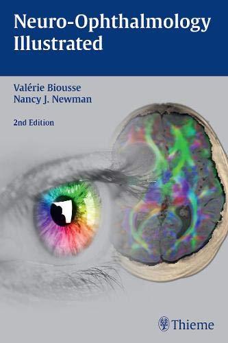 Neuro-Ophthalmology Illustrated