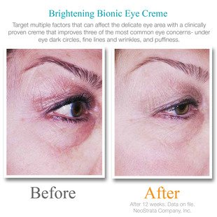 brightening bionic eye creme plus