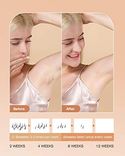 IPL Hair Removal for Women and Men,999,000 Flashes Auto Manual Modes 5 Energy Level Home Use Permanent Hair Removal…