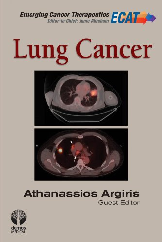 Lung Cancer (Emerging Cancer Therapeutics)