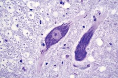 Amazoncom 470182 546 Ribosomes Nissl Bodies Ribosomes Nissl
