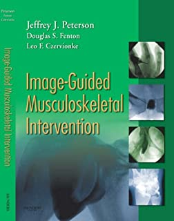 Image-Guided Spine Intervention: 9780721600215: Medicine