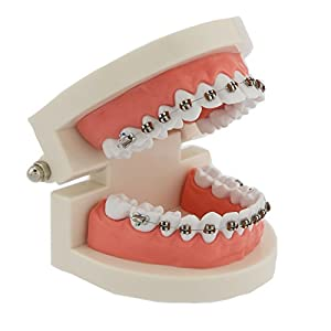 Dentalmall Dental Teeth Orthodontic Demonstration Model Typodont Teaching,Studying,Explaining Model for Adult and Children 1