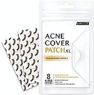 Avarelle Acne Pimple Patch (8 Count) Absorbing Hydrocolloid Spot Treatment with Tea Tree Oil, Calendula Oil an