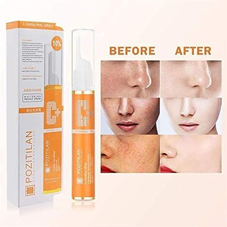LifeBest 15g Crema blanqueadora Antimanchas VC Eliminación de Manchas de pecas Crema blanqueadora Tratamiento Facial antienvejecimiento para hiperpigmentación