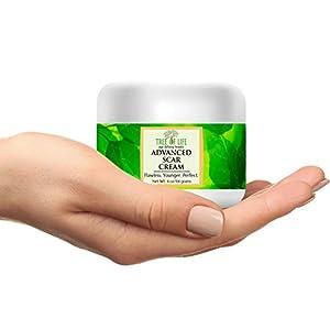 ToLB Scar Cream - 72% ORGANIC - With Arnica Montana And Vitamin E - Non-Medical Bruise and Scar Treatment (4 oz)