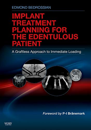Implant Treatment Planning for the Edentulous Patient: A Graftless Approach to Immediate Loading