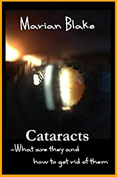 Cataracts: What are they and how to get rid of them? (Your Eyes Book 2) by [Blake, Marian]