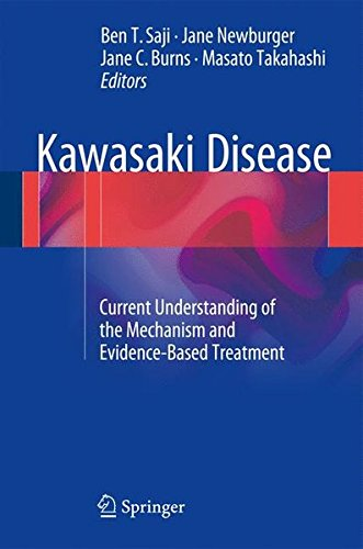 Kawasaki Disease: Current Understanding of the Mechanism and Evidence-Based Treatment