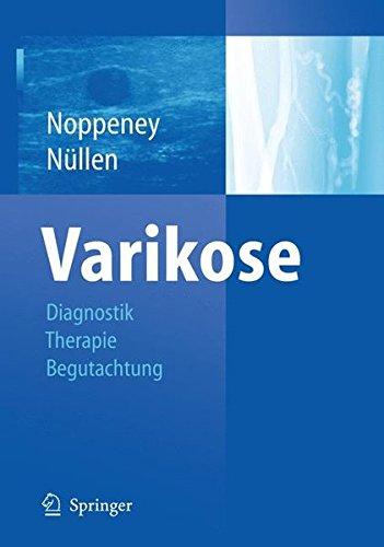 varikose-diagnostik-therapie-begutachtung