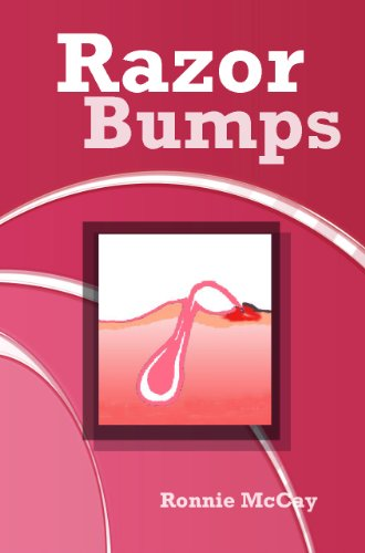 Razor Bumps (Prevent Bikini Area Razor Bumps,Treat Ingrown Hair and After Shave Bumps Book 1)