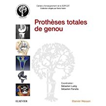 Prothèses totales de genou (French Edition)