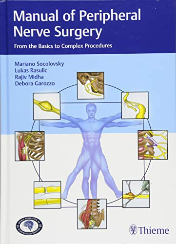 Manual of Peripheral Nerve Surgery: From the Basics to Complex Procedures (A Manual Of Diseases Of The Nervous System)