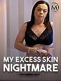 My Excess Skin Nightmare