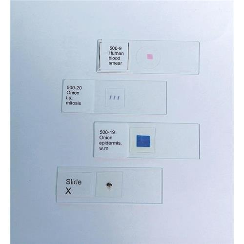 1177H94EA United Scientific Supplies 100-193Human Liver Cells Cirrhosis Prepared Microscope Slide Cirrhosis Prepared Microscope Slide Inc
