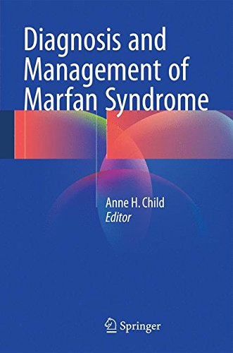 Pdf Medical Books Diagnosis and Management of Marfan Syndrome