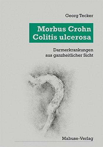 Morbus Crohn, Colitis Ulcerosa. Darmerkrankungen aus ganzheitlicher Sicht