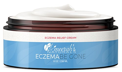 Eczema Be Gone - Cream for Eczema - Body Moisturizer - 100% Natural - Great for Psoriasis, Rashes, Rosacea, Dry Skin & Normal Skin - 8 ozs