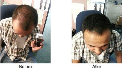 Caboki Hair Loss Concealer - Dark Brown (75-day Supply)