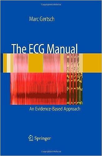 E-Books kostenloser Download für Handys The ECG Manual by Marc Gertsch PDF CHM ePub