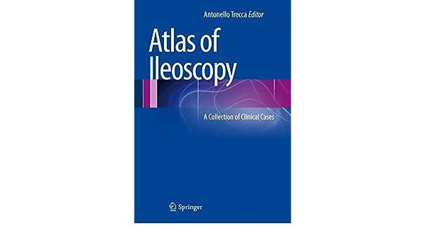 Atlas of Ileoscopy: A Collection of Clinical Cases