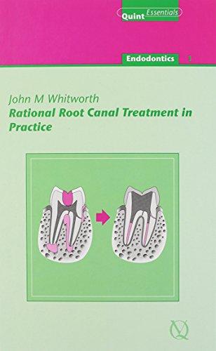Rational Root Canal Treatment in Practice_(endodontics Vol. 1) (Quintessentials of Dental Practice) (Quintessentials: Endontics)