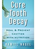 Cure Tooth Decay: Heal And Prevent Cavities With
