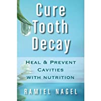 Cure Tooth Decay: Heal And Prevent Cavities With Nutrition - Limit And Avoid Dental...