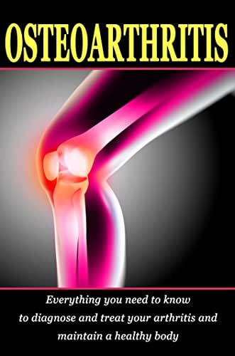 Osteoarthritis: Everything you need to know to diagnose and treat your arthritis and how to maintain a healthy body