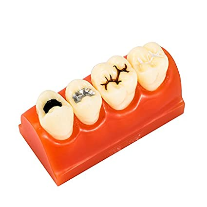 Easyinsmile Dental Pathology Teeth Study Teaching Model Sealantant Demonstration Tooth Model For Patient Education by Easyinsmile   Dental Tools