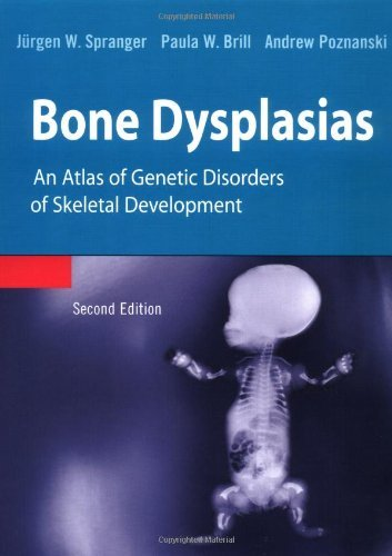 Download Bone Dysplasias: An Atlas of Genetic Disorders of Skeletal Development Pdf