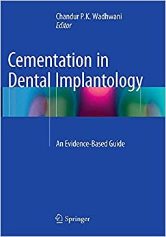 Book Cementation in Dental Implantology: An Evidence-Based Guide