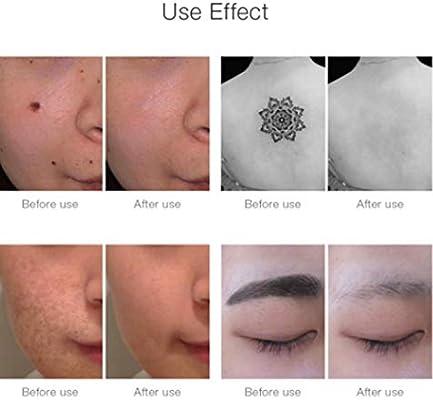 Picosecond lápiz láser Luz Azul terapia pigmento tatuaje cicatriz ...