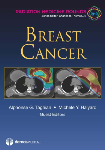 Breast Cancer (Radiation Medicine Rounds)