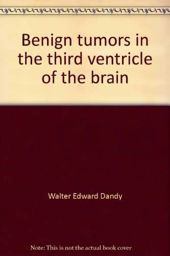 Benign tumors in the third ventricle of the brain: Diagnosis and treatment