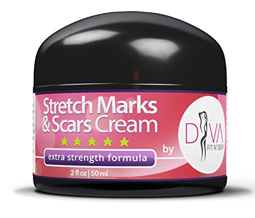 Stretch Mark and Scar Removal Cream by DIVA Fit & Sexy - Made with Natural and Organic Herbal Extracts!