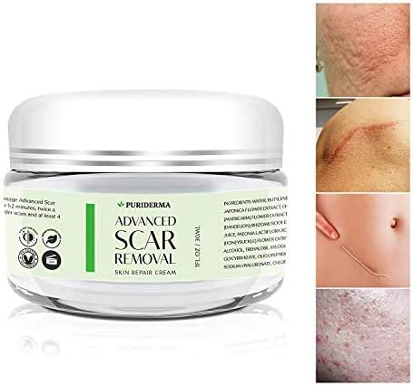 Acne Scar Removal Cream Treatment for Face, Remove & Lighten Old & New Scars, Spots & Marks, Natural, Gentle & Effective Herbal Extracts Formula (30 ml)- by PuriDerma
