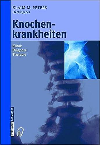 Knochenkrankheiten: Klinik Diagnose Therapie